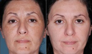 chemical-peel-3